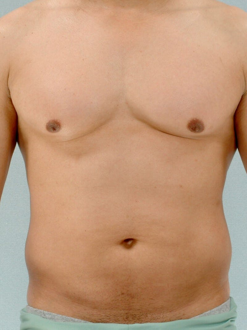 Abdominal Etching Gallery - Patient 20913125 - Image 1
