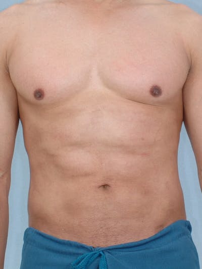 Abdominal Etching Gallery - Patient 20913125 - Image 2