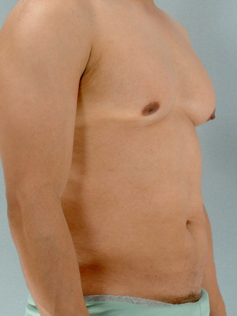 Abdominal Etching Gallery - Patient 20913125 - Image 3