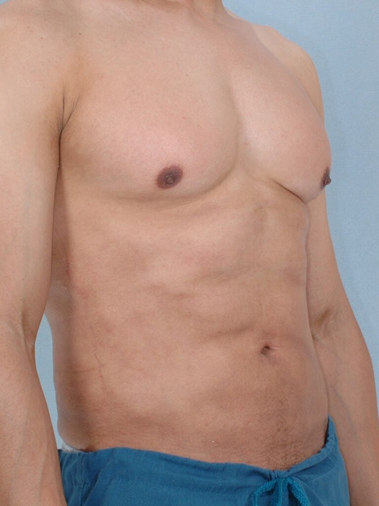 Abdominal Etching Gallery - Patient 20913125 - Image 4