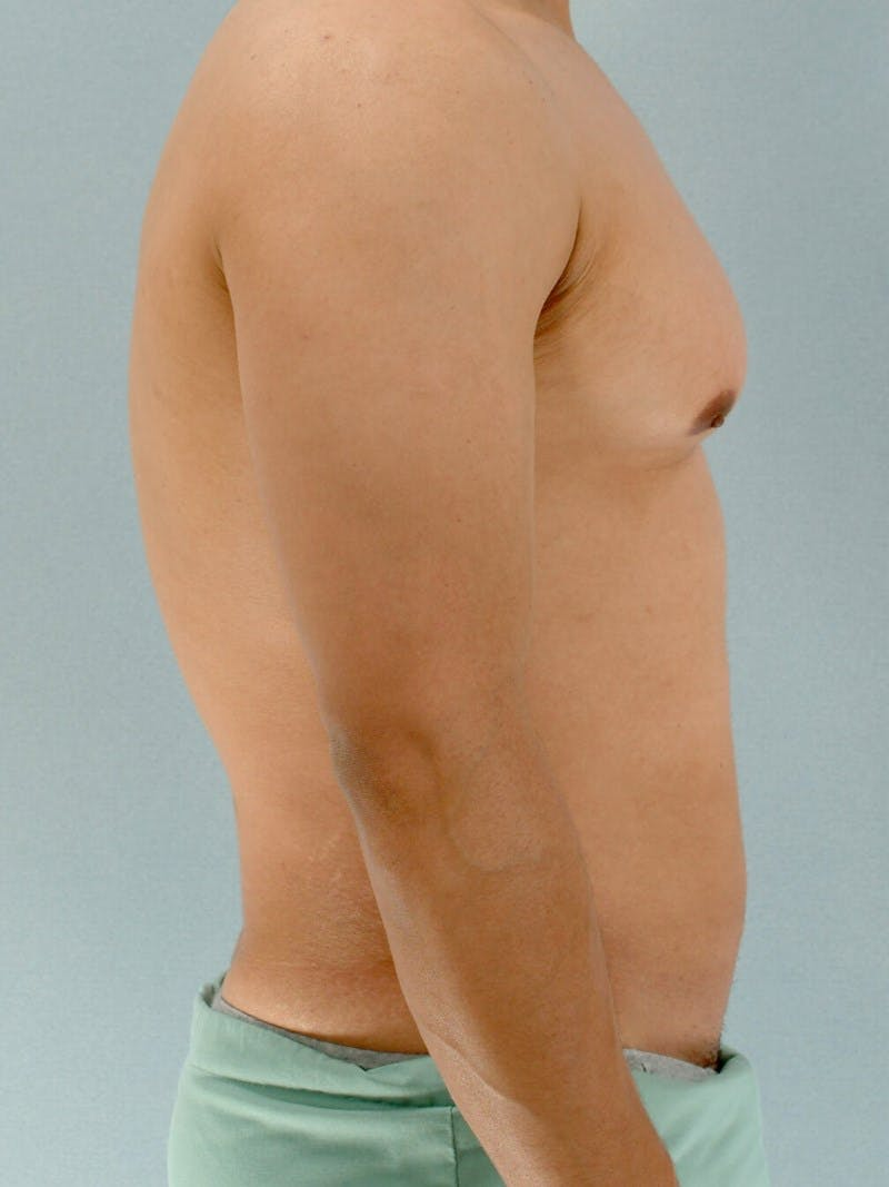 Abdominal Etching Gallery - Patient 20913125 - Image 5