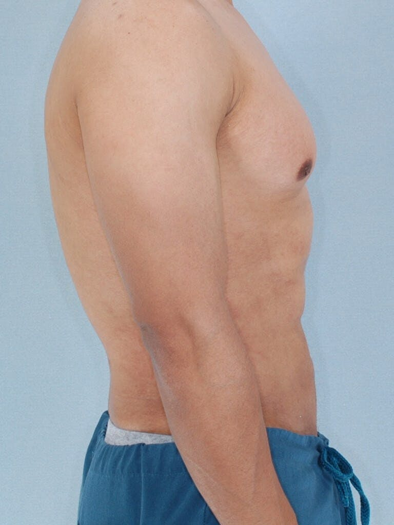 Abdominal Etching Gallery - Patient 20913125 - Image 6