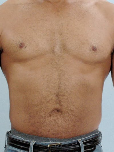 Abdominal Etching Gallery - Patient 20913132 - Image 1