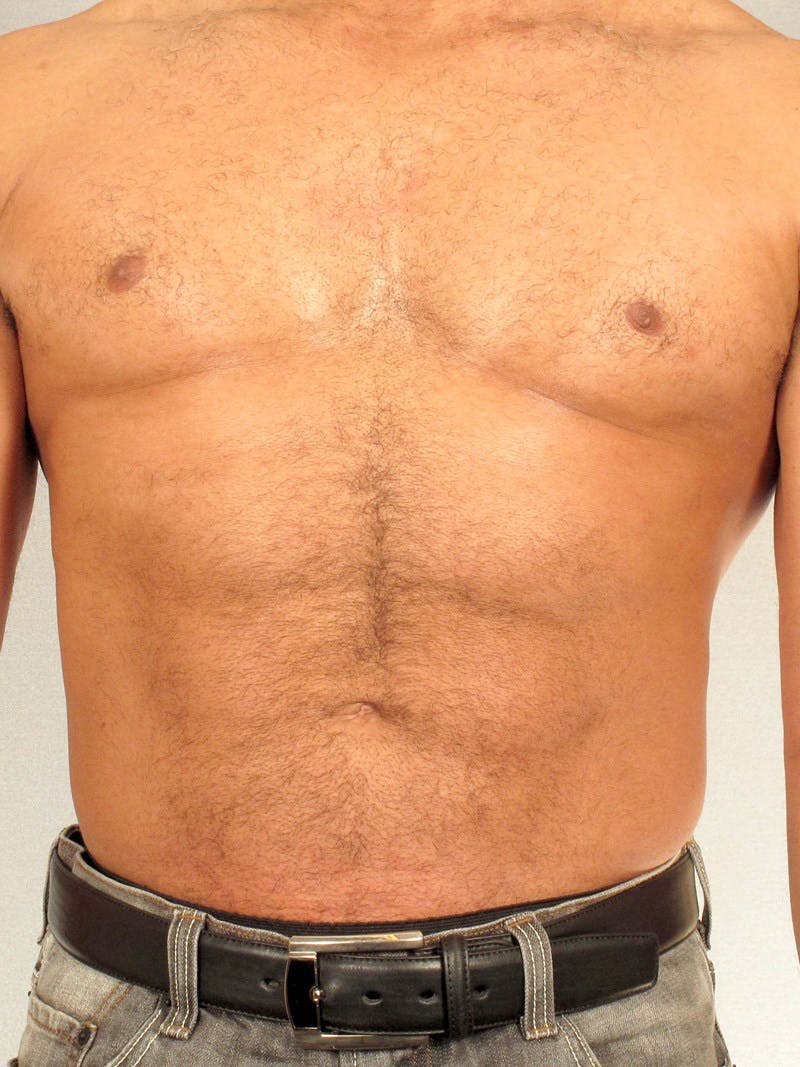 Abdominal Etching Gallery - Patient 20913132 - Image 2