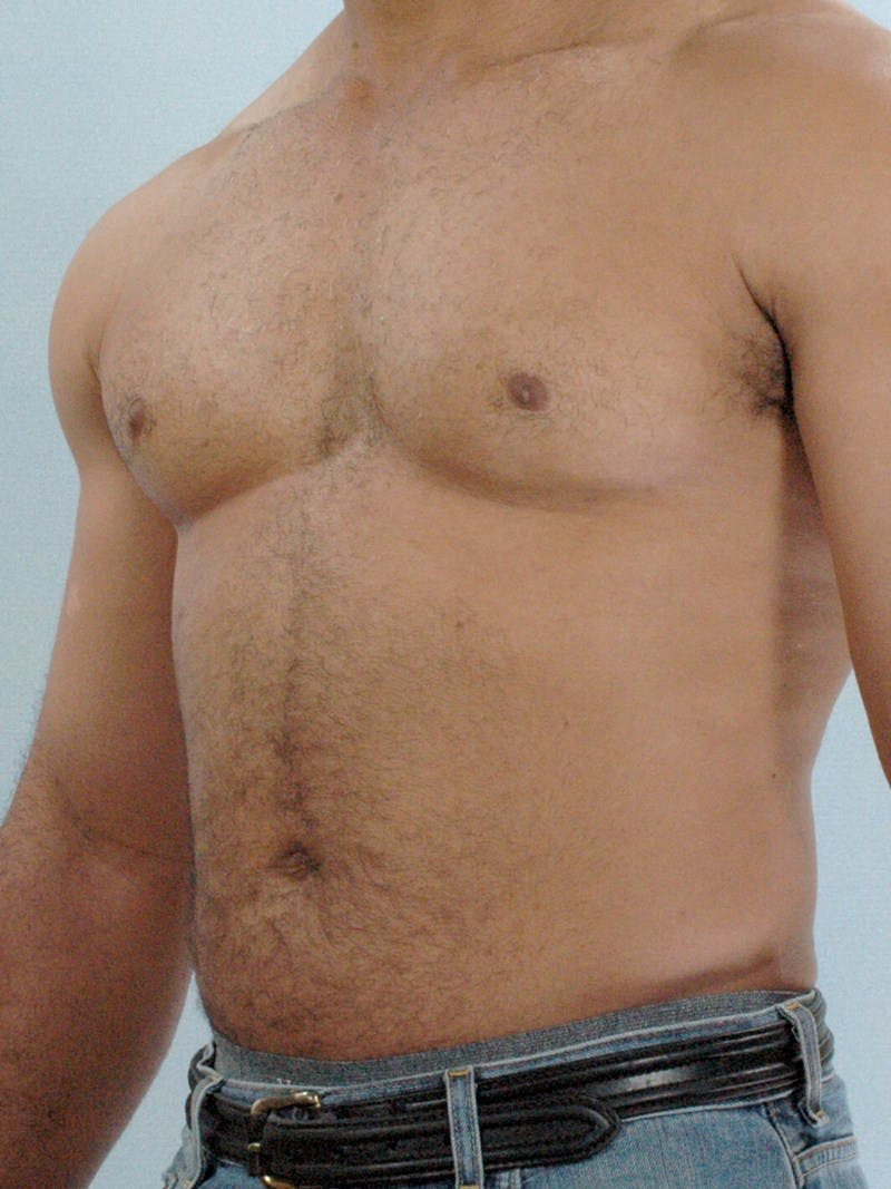 Abdominal Etching Gallery - Patient 20913132 - Image 3