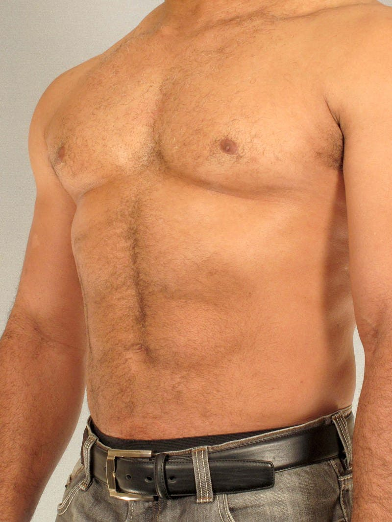 Abdominal Etching Gallery - Patient 20913132 - Image 4