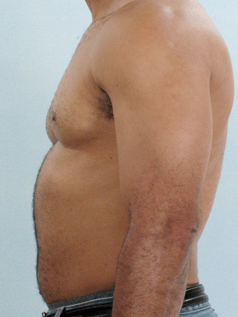 Abdominal Etching Gallery - Patient 20913132 - Image 5