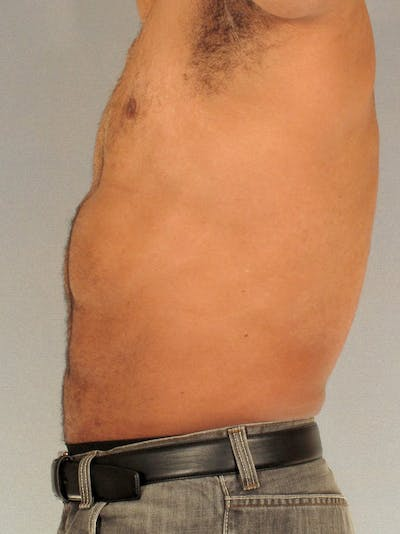 Abdominal Etching Gallery - Patient 20913132 - Image 6