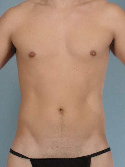 Abdominal Etching Gallery - Patient 20913141 - Image 1