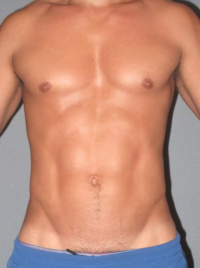 Abdominal Etching Gallery - Patient 20913141 - Image 2