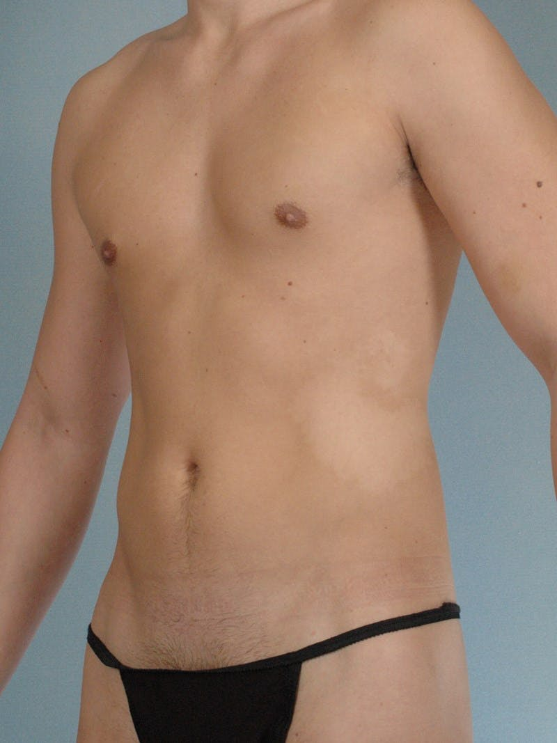 Abdominal Etching Gallery - Patient 20913141 - Image 3