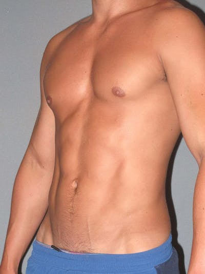 Abdominal Etching Gallery - Patient 20913141 - Image 4