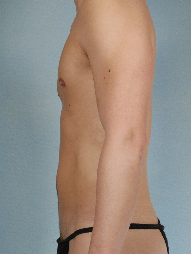 Abdominal Etching Gallery - Patient 20913141 - Image 5