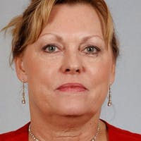 Facelift Gallery - Patient 20938830 - Image 1