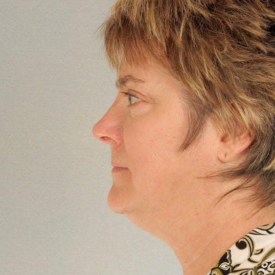 Facelift Gallery - Patient 20938832 - Image 5