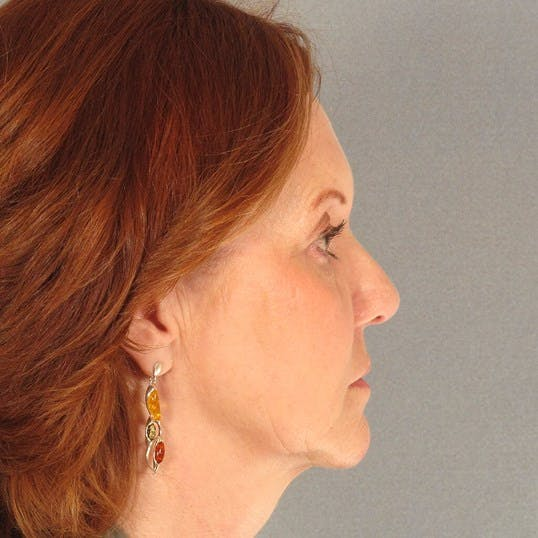 Facelift Gallery - Patient 20938833 - Image 5