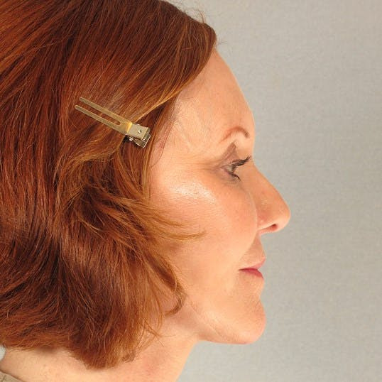 Facelift Gallery - Patient 20938833 - Image 6