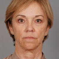 Facelift Gallery - Patient 20938834 - Image 1