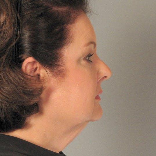 Facelift Gallery - Patient 20938837 - Image 5