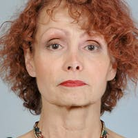 Facelift Gallery - Patient 20939365 - Image 1