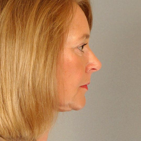 Neck Lift Gallery - Patient 20953767 - Image 6