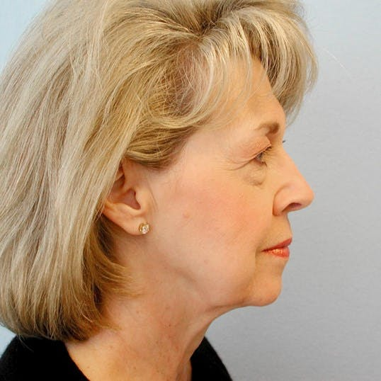 Neck Lift Gallery - Patient 20953770 - Image 5