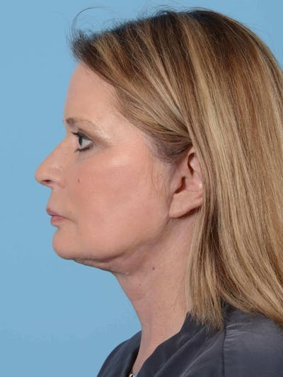 Neck Lift Gallery - Patient 20954011 - Image 6