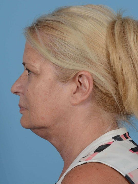 Neck Lift Gallery - Patient 20954011 - Image 5