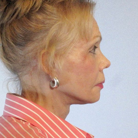 Neck Lift Gallery - Patient 20954012 - Image 6