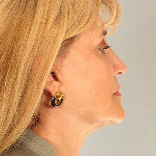 Neck Lift Gallery - Patient 20954015 - Image 6