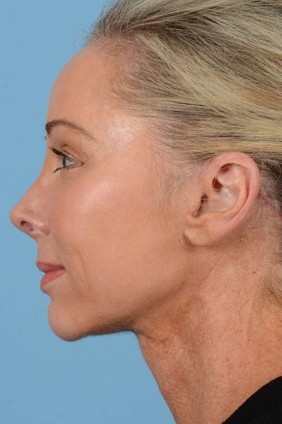Neck Lift Gallery - Patient 20954016 - Image 10