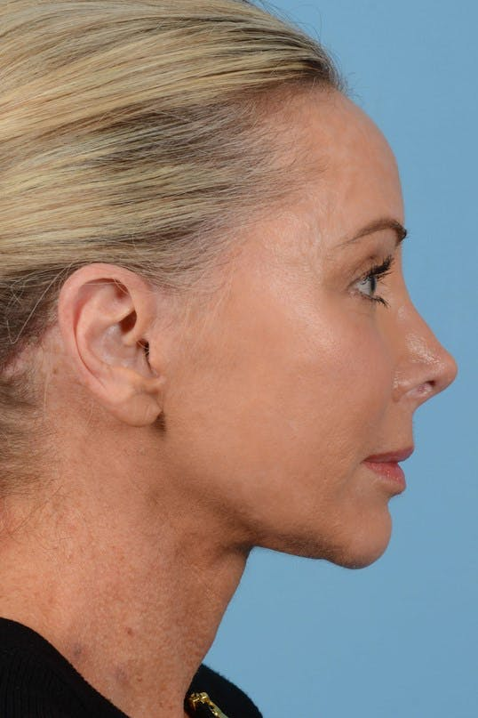 Neck Lift Gallery - Patient 20954016 - Image 6