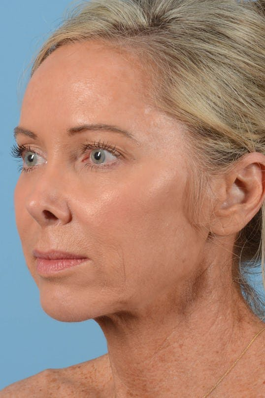 Neck Lift Gallery - Patient 20954016 - Image 7