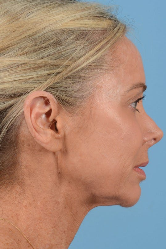 Neck Lift Gallery - Patient 20954016 - Image 5