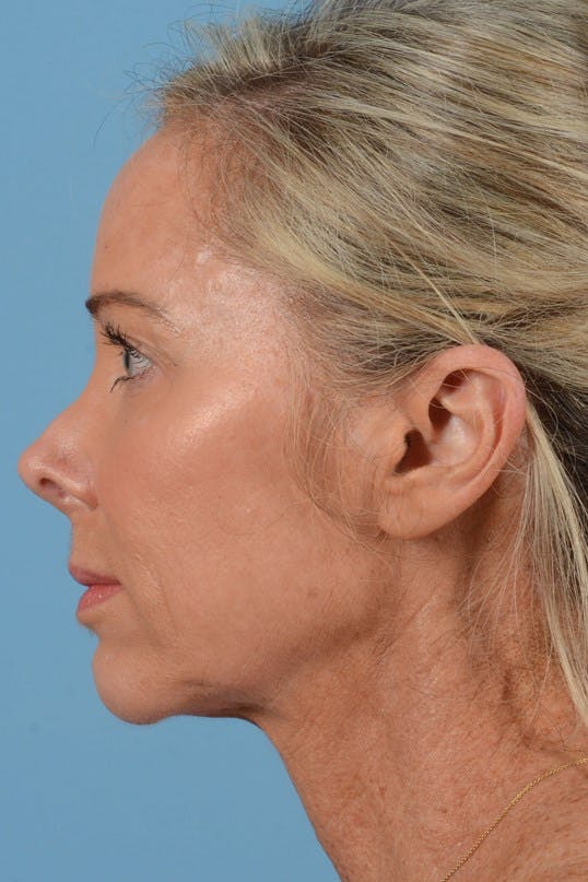 Neck Lift Gallery - Patient 20954016 - Image 9