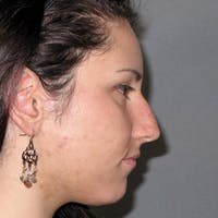 Rhinoplasty Gallery - Patient 20968412 - Image 1