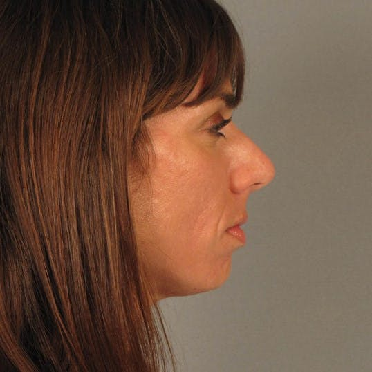 Rhinoplasty Gallery - Patient 20968413 - Image 1