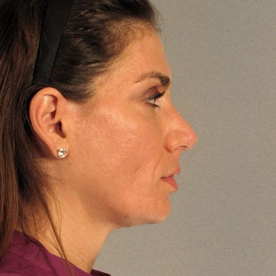 Rhinoplasty Gallery - Patient 20968413 - Image 2