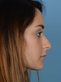 Rhinoplasty Gallery - Patient 20968414 - Image 1