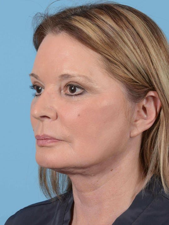 Eyelid Lift Gallery - Patient 20906446 - Image 4