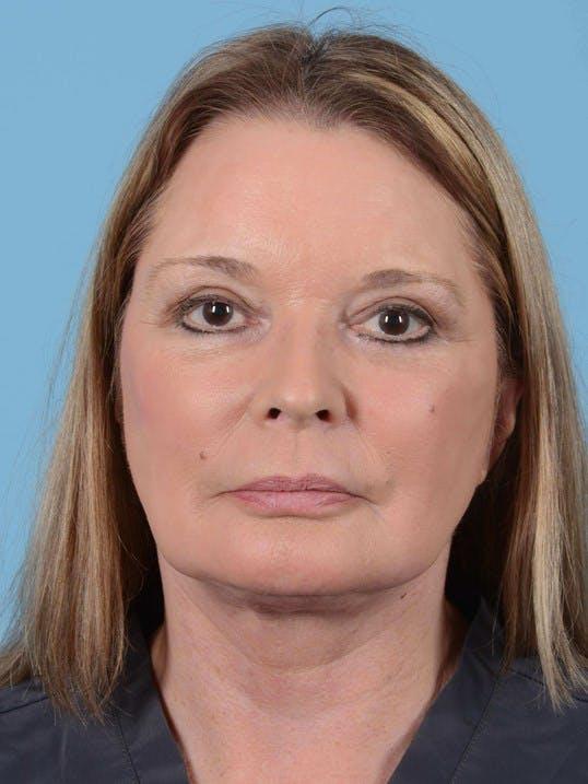 Facial Augmentation Gallery - Patient 20906659 - Image 2
