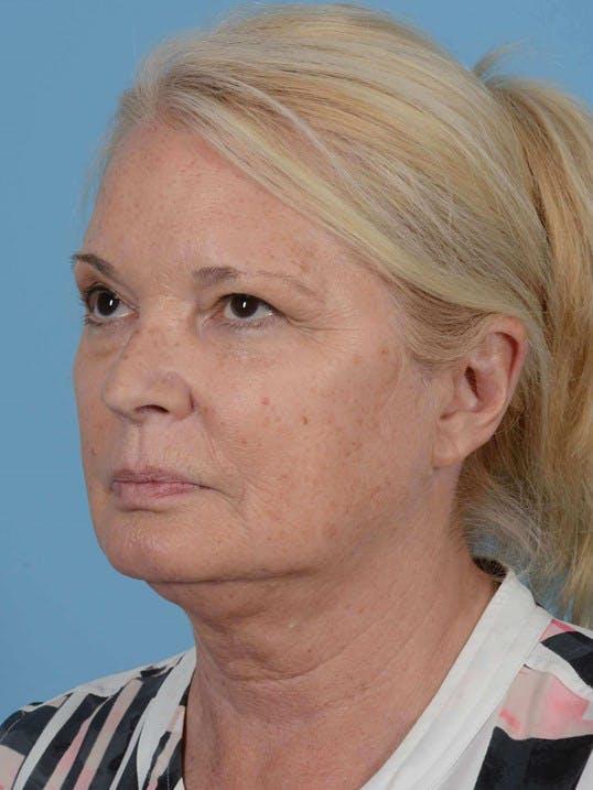 Facial Augmentation Gallery - Patient 20906659 - Image 3