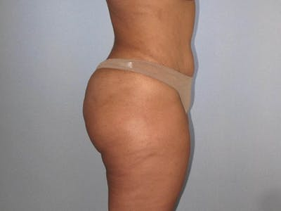 Liposuction Gallery - Patient 20909818 - Image 4