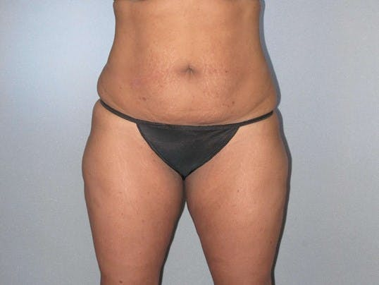 Tummy Tuck Gallery - Patient 20909847 - Image 1