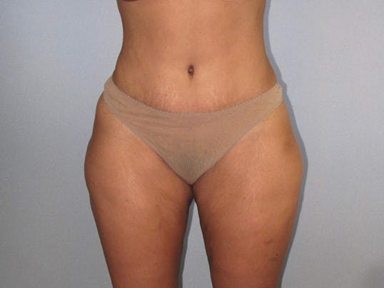 Tummy Tuck Gallery - Patient 20909847 - Image 2