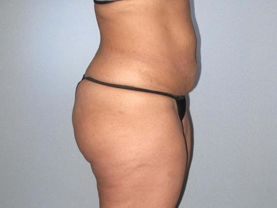 Tummy Tuck Gallery - Patient 20909847 - Image 3