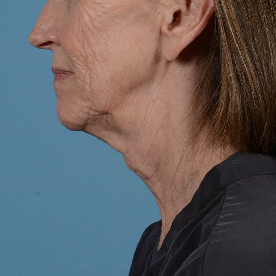 Facelift Gallery - Patient 26798787 - Image 11