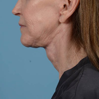 Facelift Gallery - Patient 26798787 - Image 12