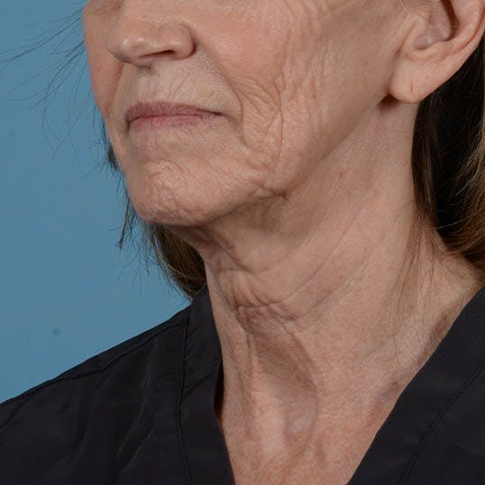 Facelift Gallery - Patient 26798787 - Image 9