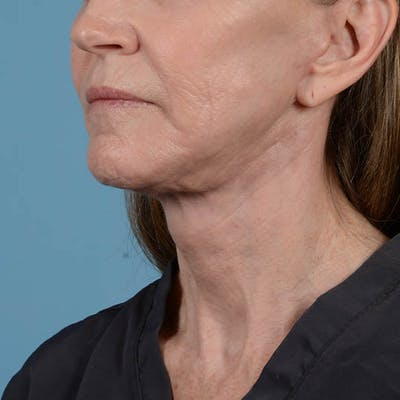 Facelift Gallery - Patient 26798787 - Image 10
